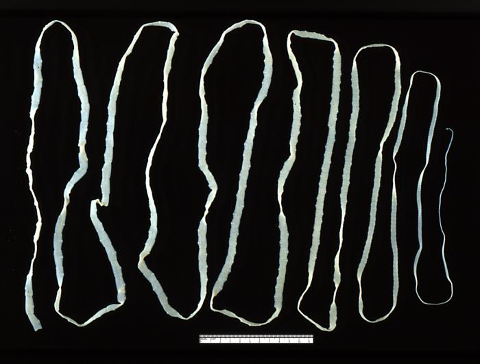Should you eat a tapeworm to lose weight?
